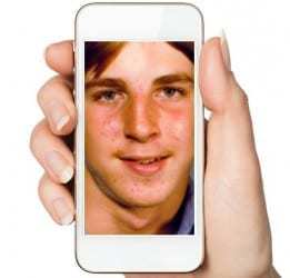 Mobile technology is being used to treat acne